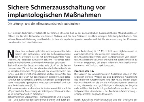 """Zahnimplantate ohne Schmerzen - Bericht aus """"Dentale Implantologie"""" Februar 2020"""